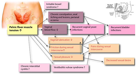 In Women, Pain From Intercourse (dispareunia) Can Be Treated As Well. The  Vagina Orifice Might Have Muscle Spasms And Would Not Open Sufficiently For  ...